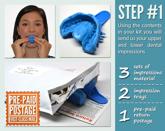 Using the contents in your teeth whitening kit, you will send us your upper and lower dental impressions.
