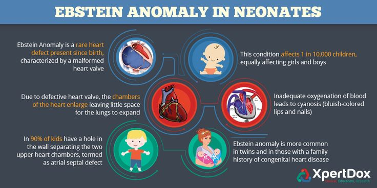 Ebstein anomaly in neonates