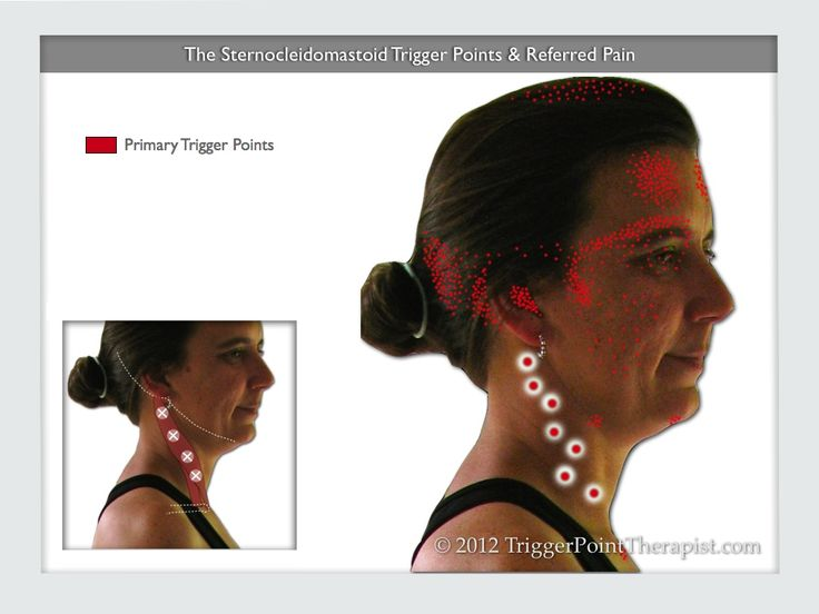 Sternocleidomastoid Trigger Points and Referred Pain