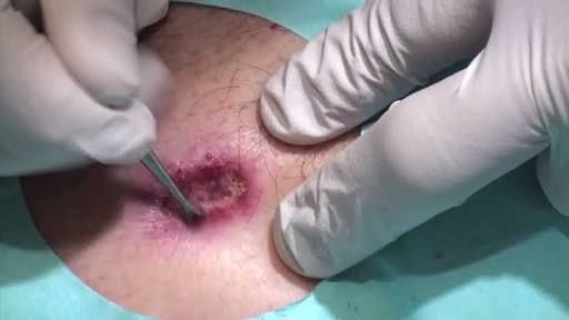 If you do have skin cancer you go through a very painful treatment part of which if getting the cancerous skin cut out and removed.
