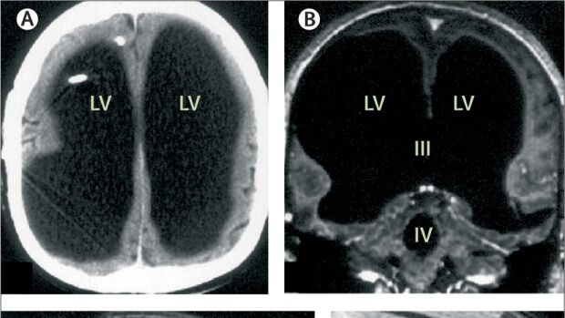 The Scientific Mystery of a Man Living with 90% of His Brain Missing