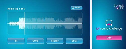 Boehringer Ingelheim IPF Sound Challenge mobile app iPhone Android