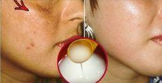 Finalmente você terá um rosto livre de manchas com esta receita natural! | Cura…