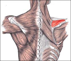 Supraspinatus tendon tear