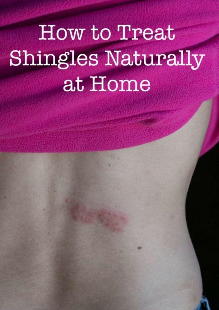 How To Treat Shingles Naturally