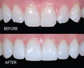 before-prepless-porcelain-veneers.jpg (275×223)