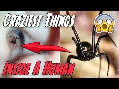 8 Craziest Things Ever Found in a Human Body