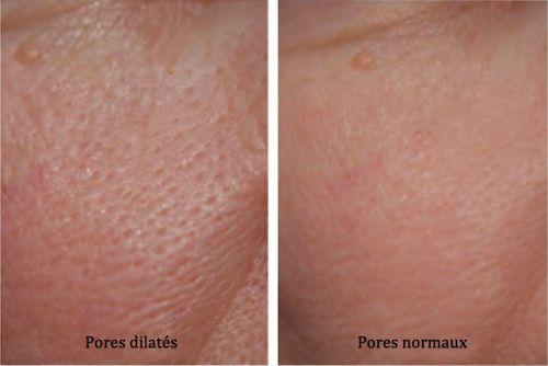 Les masques pour la peau huileuse de la personne avec les huiles volatiles