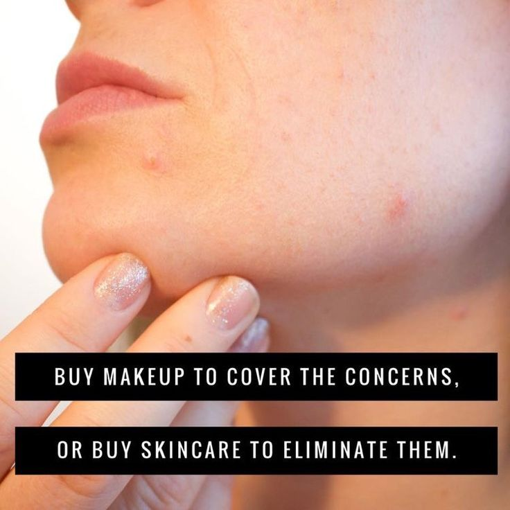 Why spend all that money to just to cover up your skin?  Why not treat the problems and have amazing skin without all of that makeup?  Rodan + Fields has a regimen to address any problem you have.  Use our Solution Tool to determine which is right for you!
