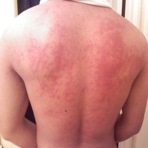 BEST HERBAL REMEDIES FOR HIVES