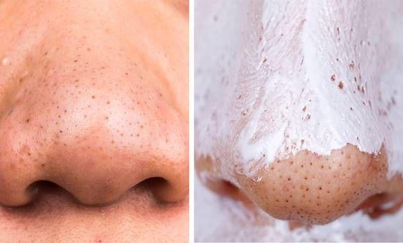 A tökéletes házi maszk, amely 5 perc alatt megszünteti a mitesszereket