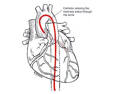Best 10+ Cardiac catheterization ideas on Pinterest