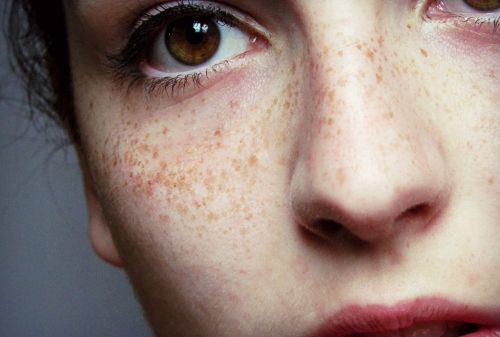 Image de girl, eyes, and freckles