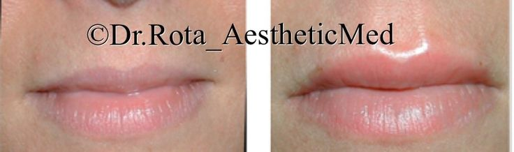 Lips remodeling with Jaluronic Acid