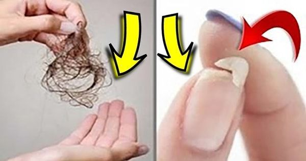 Remédio caseiro para queda de cabelo e unhas fracas. Essa receita totalmente natural irá fortalecer o seu organismo de dentro para fora.
