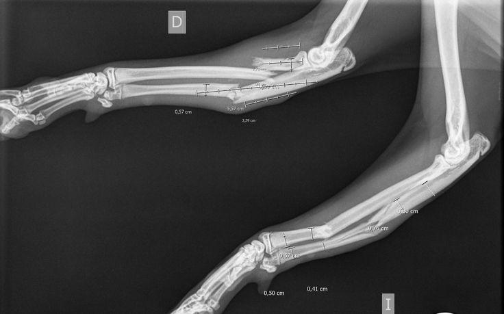 Fractura de radio y cubito bilateral en gato.Fracture of radius and ulna bilaterally in cat.