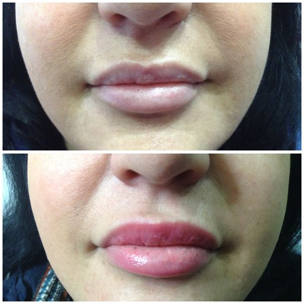 www.spabannockburn.co.uk   Dermal Fillers Juvederm Ultrasmile to enhance lips