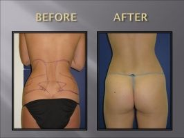 Smart Lipo Before and After Photos: Waist