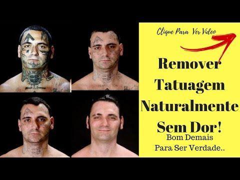 Como Remover Tatuagem Naturalmente   Método De Remoção De Tatuagem Sem L...