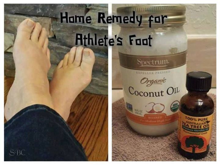 Know anyone with Athlete's Foot?  Coconut Oil to the Rescue! Have you or someone you know ever been bothered by Athlete's Foot? It can cause misery if left untreated. First, be sure to wash and dry feet very well everyday, especially drying between toes. Also, be sure to thoroughly wash socks with hot water to help kill the fungus. Once feet are clean and dry, use this mixture on feet, and especially between to...es twice daily until healed.  1/4 Cup Coconut Oil 10-15 drops Tea Tree Oil…