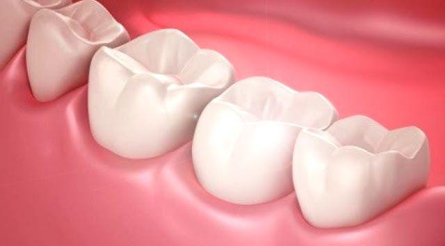Jenis makanan yang melindungi gigi dan gusi anda tetap sehat dan kuat http://www.kangalip.com/2017/04/jenis-makanan-yang-melindungi-gigi-dan.html