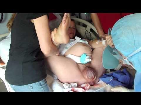 Top Pdf Vaginal Birth After Cesarean