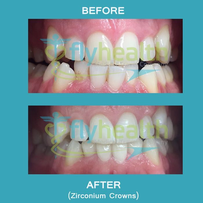Flawless Dental Crown Design Teethwhiteningkits