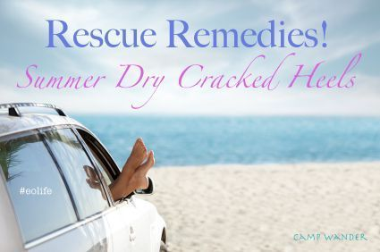 EO Rescue Remedies for Summer Dry, Cracked Heels