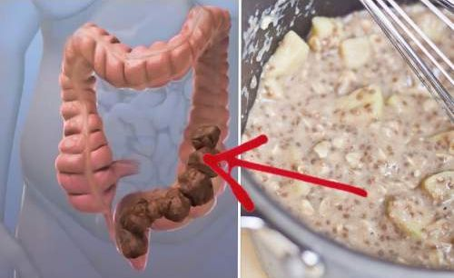 Natural, home remedy for Colon cleansing – apple-honey treatment [recipe].