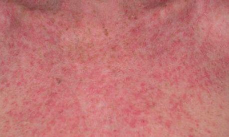 Eczema Symptoms & Signs | NEOSPORIN®