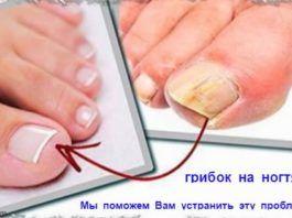 Как лечить грибок на ногтях ног?