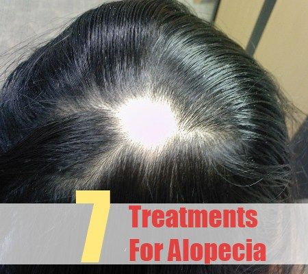 """The problem of alopecia is commonly referred to as """"Hair Loss''. There are various factors such as iron and vitamin deficiency, fungal infection, stress, hormonal imbalance, keratosis, frequent use of"""
