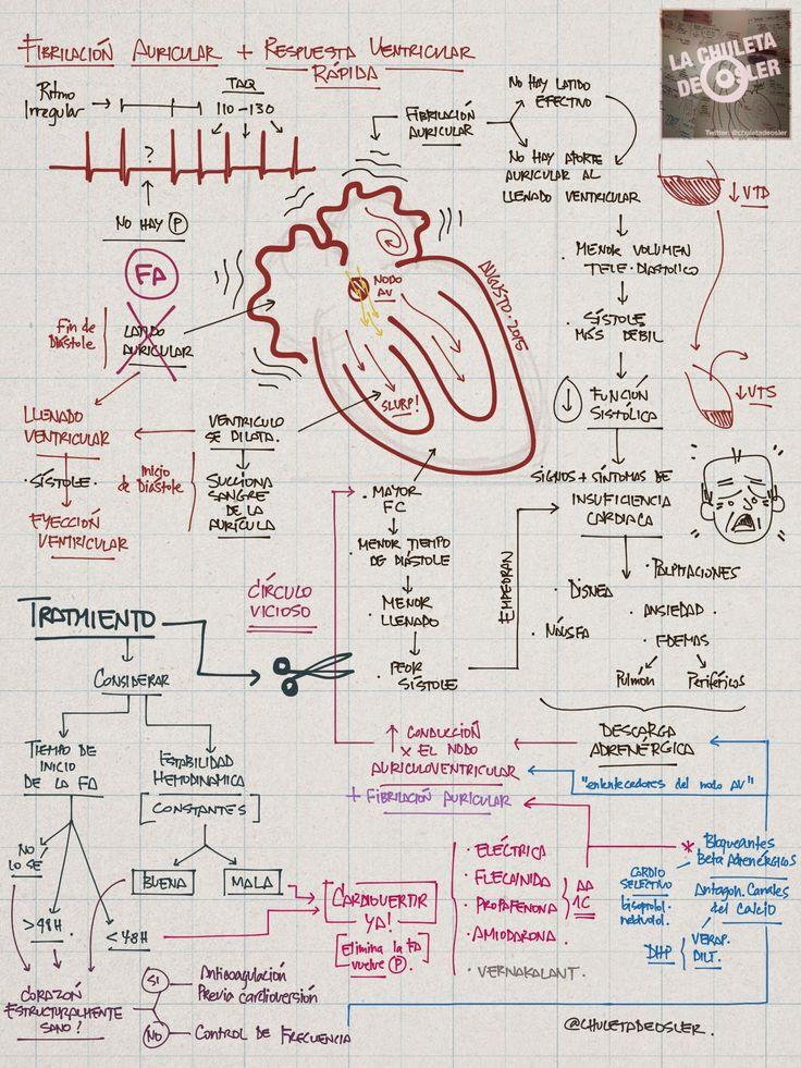 La Chuleta de Osler: Cardiología: Fibrilación auricular con respuesta ventricular rápida. Qué hago? (III)