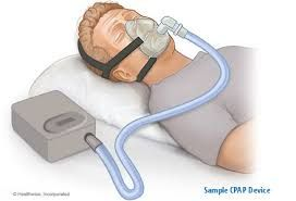 Sleep apnea devices Market Demand, Growth, Opportunities and Analysis of Top Key Player Forecast to 2022