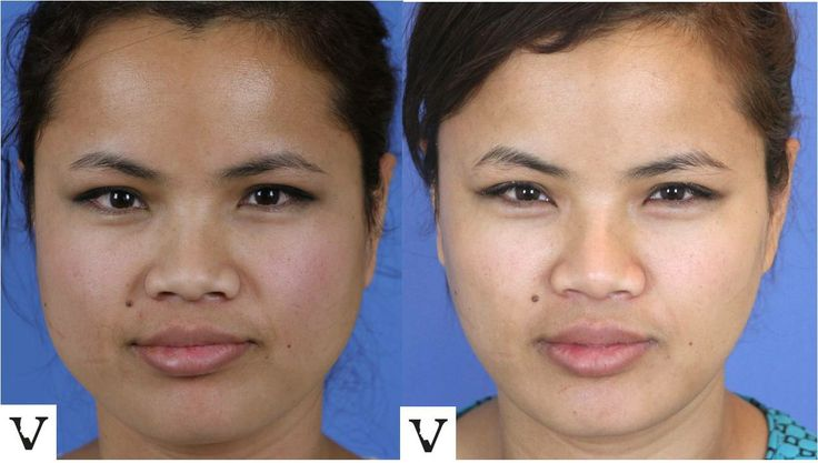 Non-surgical jaw reduction with Dysport (or Botox ...