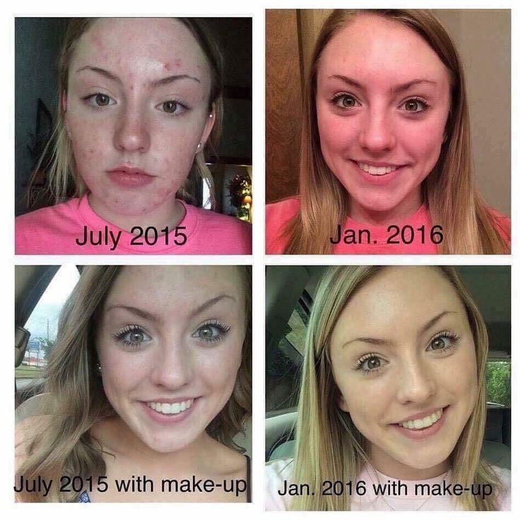 """What an incredible UNBLEMISH before and after.   Here's what Jenna had to say: """"It's Amazing the difference in my skin over the past six months! It's really incredible how much these products have completely cleared my skin and given me back my confidence. I have used the Unblemish Regimen daily with the Micro-Dermabrasion paste 3x/week and Soothe when needed.""""  #RFJourney #unblemish"""
