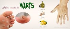 34 Natural home remedies for warts on hands, feet