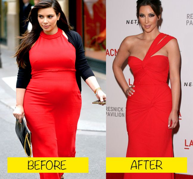 10 Best BBL before and after images | Cher plastic surgery ...