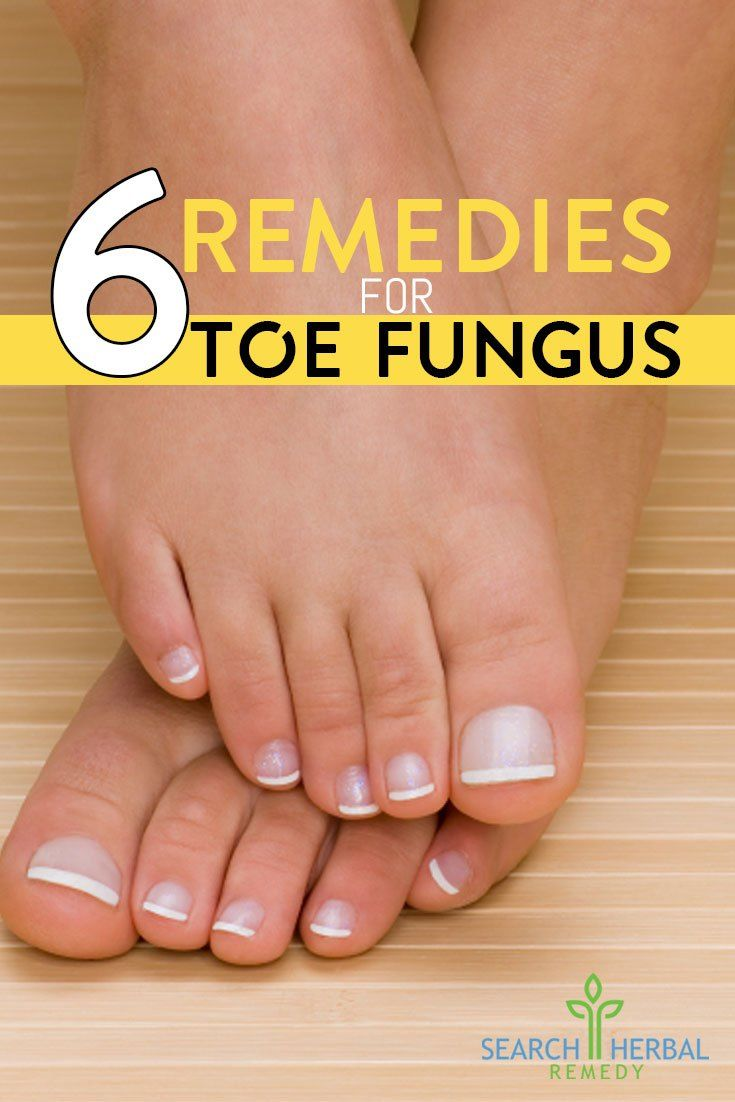 6 Remedies For Toe Fungus