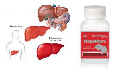 """Hepatsure Capsule obat herbal atasi HbsAg atau Hepatitis B yang sangat AMPUH dan tidak menimbulkan efek samping. Melayani Pemesanan ke seluruh Indonesia dan memberikan penawaran yang menarik untuk anda """"KIRIM BARANG DULU, SETELAH BARANG SAMPAI BARU BAYAR & DIJAMIN UANG KEMBALI JIKA BARANG TIDAK SAMPAI KE ALAMAT ANDA"""""""