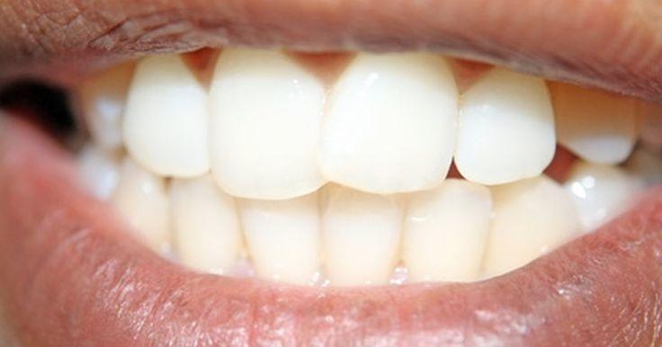 Como restaurar o esmalte do dente. Um sorriso perfeito pode iluminar qualquer roupa, em qualquer dia. Mas, ter seus dentes brancos não é necessariamente uma solução rápida. Restaurar o esmalte do dente amarelado, desbotado ou danificado é possível, se você tomar o cuidado adequado e seguir alguns passos para garantir a restauração a longo prazo.