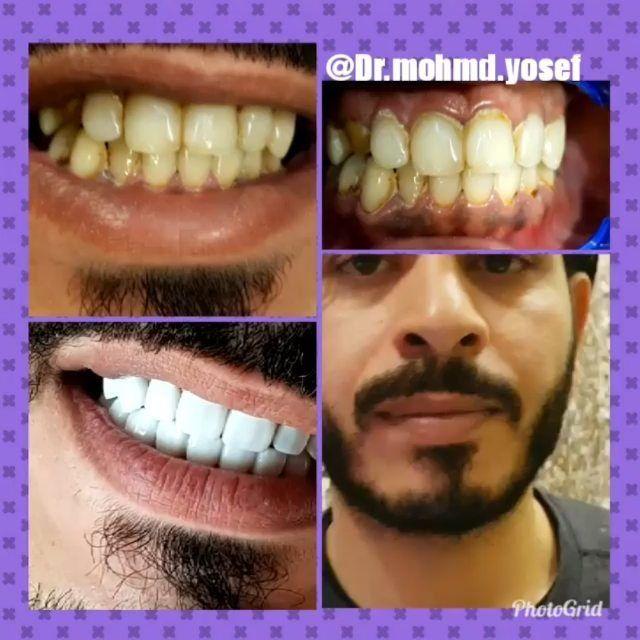 تجميل الاسنان الامامية بإستخدام القشور الخزفية Enjoy New Smile Emax Porcelainveneers Regrann Cool Newborn Wearable Case Fashion