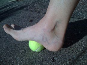 Behold the Class: Bunion Exercises