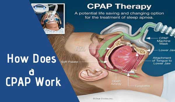 How Does A Cpap Work Sleep Apnea In 2020 Sleep Apnea Cpap Apnea