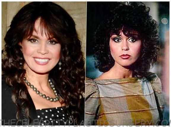 Marie Osmond Before And After Cosmetic Surgery Marie