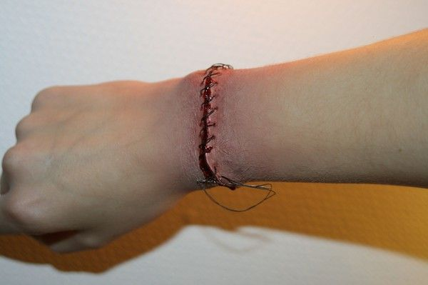 reattached hand... i wanna try this