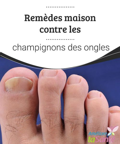 Remèdes maison contre les champignons des ongles  Vous souffrez de mycoses au niveau des ongles des pieds et des mains ? Venez découvrir nos remèdes naturels pour combattre les champignons.