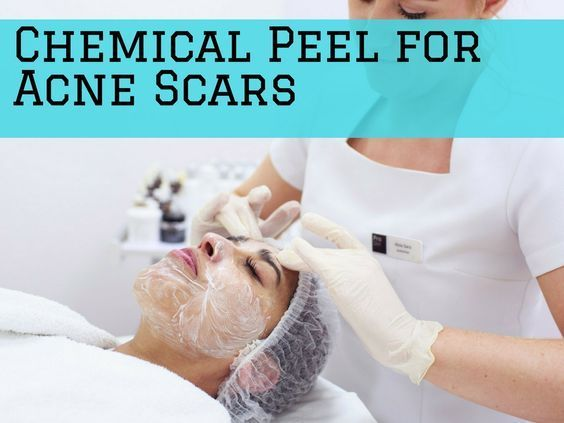 Learn about best chemical peel for acne scars options, see which tipe of peel would suit your skin better and what results you can expect. *** To view further for this item, visit the image link.