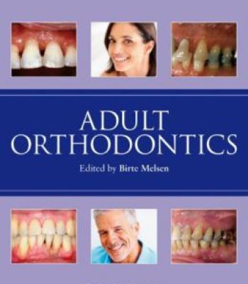 Adult Orthodontics PDF