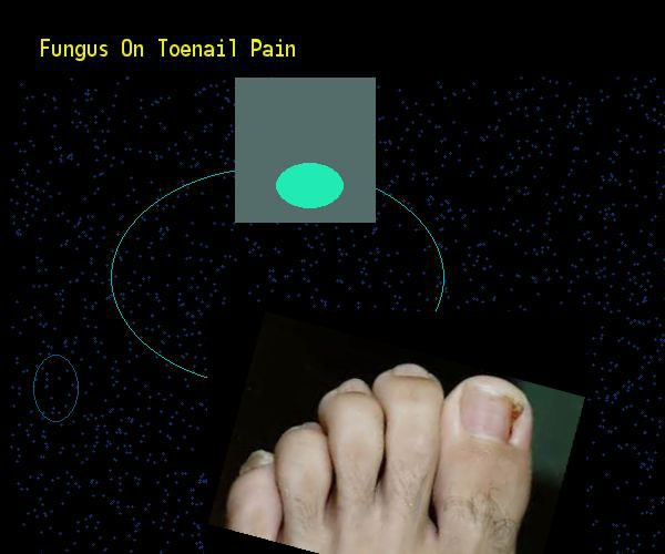 Fungus on toenail pain - Nail Fungus Remedy. You have nothing to lose! Visit Site Now